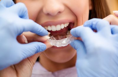 Answers to get before opting for a dental treatment